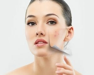 Cosmetic Treatments - Woman with blemish on her cheek - Plastic Surgery Clinic